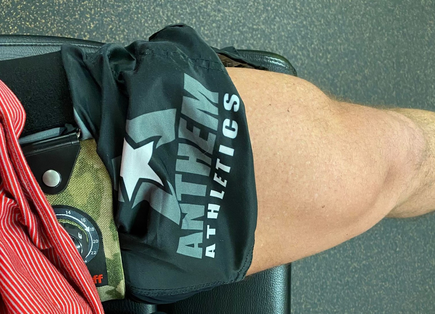 Avoiding the Pitfalls of Rehab – Part II A Physical Therapist/Patient Perspective/Story